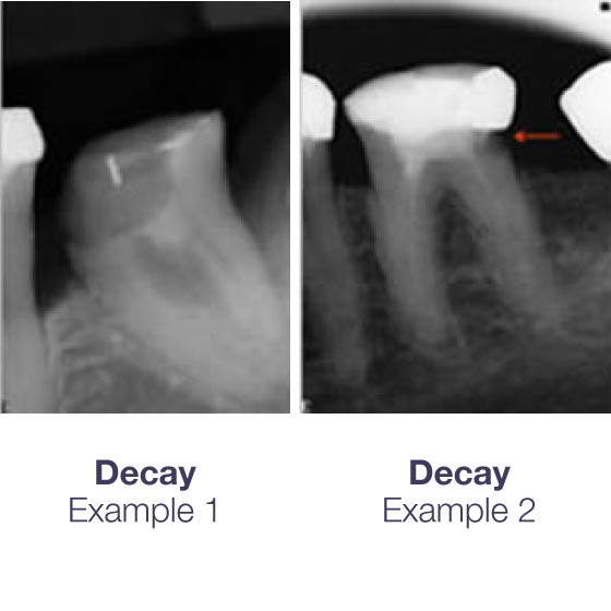 Decay examples on Endo61 X-Rays