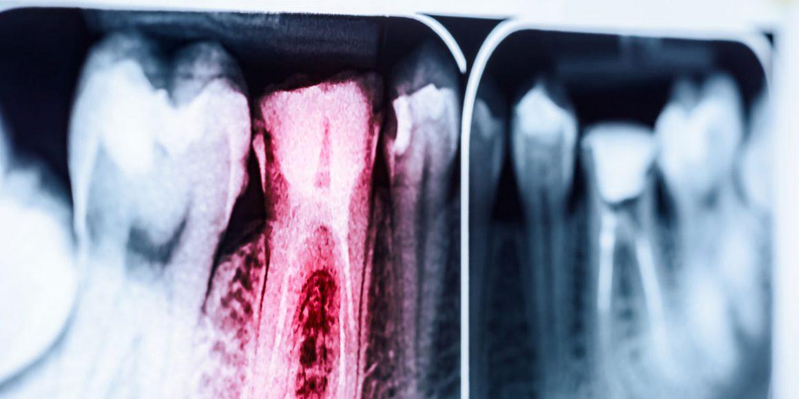 X-rays Endo61
