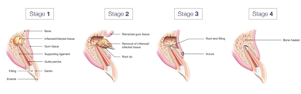 """Courtesy of the AAE, """"Your guide to Endodontic Surgery"""""""
