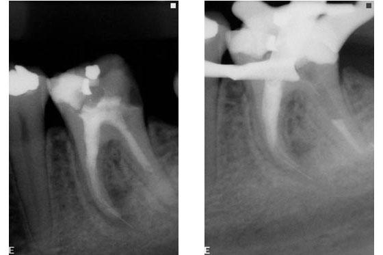X-rays part 1