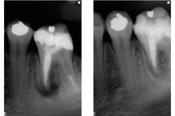 X-rays part 2